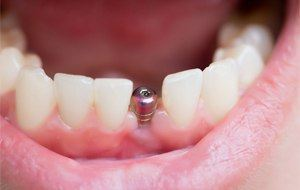 Dental implant visible in smile line closeup