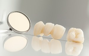 Custom dental crown and bridge