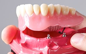 Model all-on-4 dental Implant supported denture