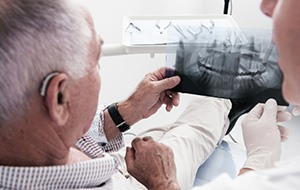 Dentist showing patient dental x-rays before bone grafting