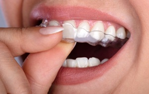 person inserting nightguard for bruxism