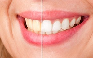 Smile half beforeand half after whitening
