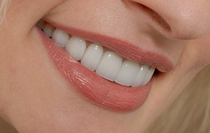 Closeup of healthy smile thanks to dental sealants