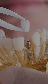 Implant supported dental crown