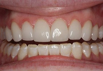 Beautiful teeth after alignment