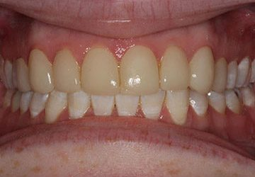 Teeth with orthodontic appliance