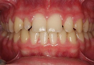 Yellowed and decayed teeth