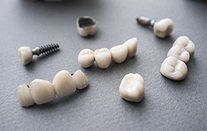 Dental implant crowns and bridges before placement