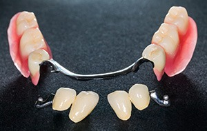 Dental implant retained partial dentures