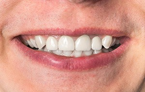 Closeup of  natural looking dental implant supported denture
