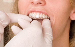 Closeup of dentist placing Invialign tray