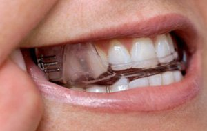 Closeup of patient wearing oral appliance