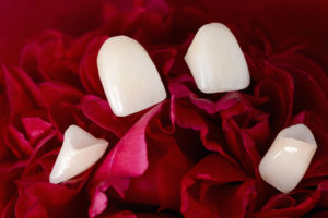 Porcelain veneers in Lincoln disguise flaws and minor spacing problems.