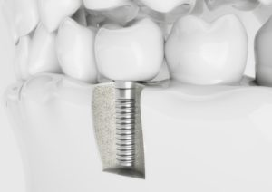 dental implant screwed into jawbone