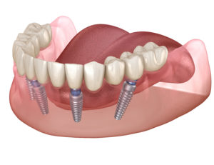 Graphic showing All-on-4 dental implants in Lincoln