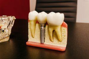 Dentist for dental implants in Lincoln.